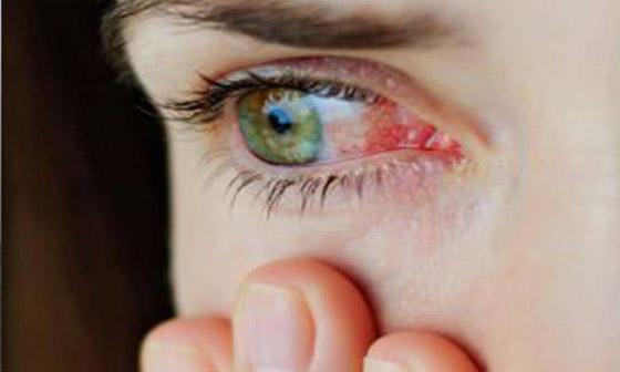 ما هي متلازمة عين المكتب؟ ان كنت تستعمل الكمبيوتر كثيرا قد تصيبك! صورة رقم 7