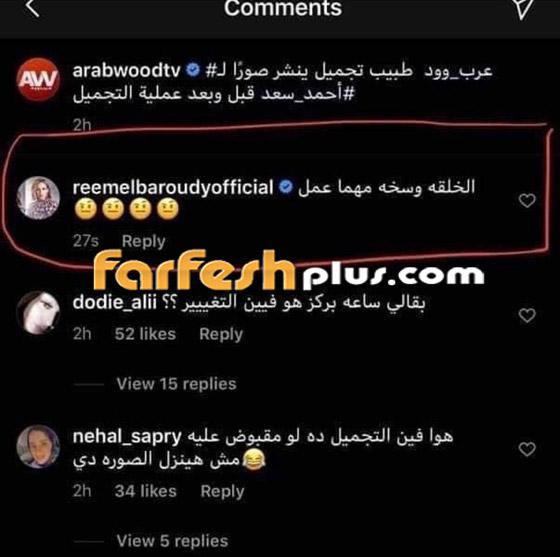 ريم البارودي تسخر من طليقها أحمد سعد وعملية التجميل التي أجراها بعد خطوبته صورة رقم 1