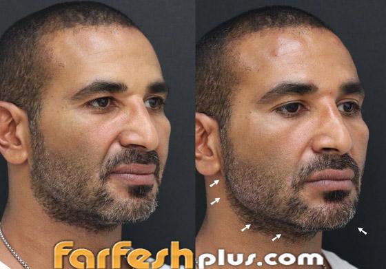 ريم البارودي تسخر من طليقها أحمد سعد وعملية التجميل التي أجراها بعد خطوبته صورة رقم 3