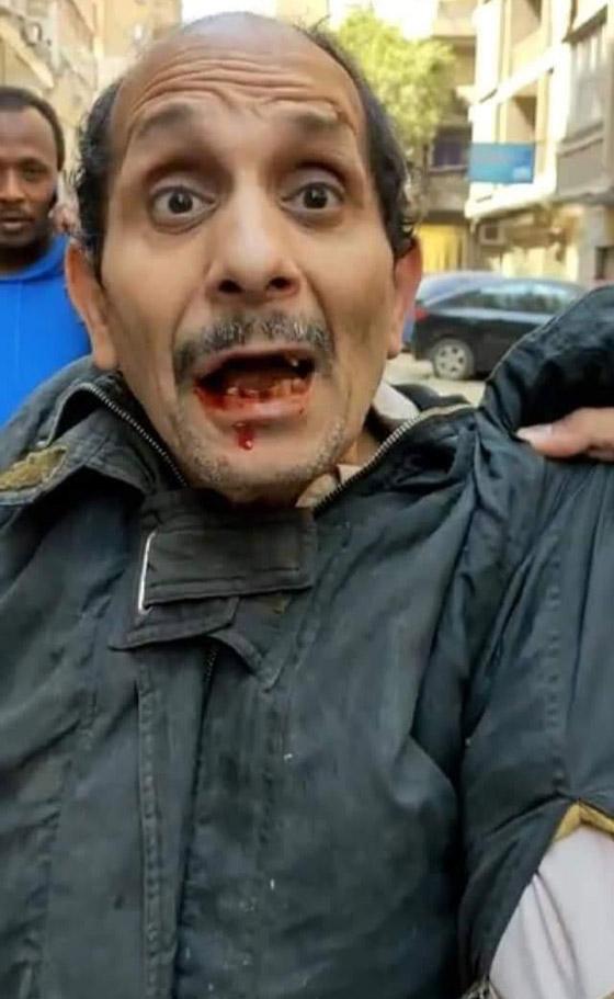 صورة رقم 3 - فيديو: فتاة مصرية (جدعة) تلكم متحرش وتسقط بعض أسنانه.. كل الاحترام