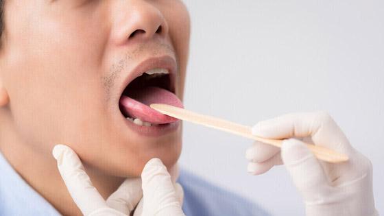 صورة رقم 1 - علامتان في الفم تدلان على ارتفاع مستويات السكر في الدم