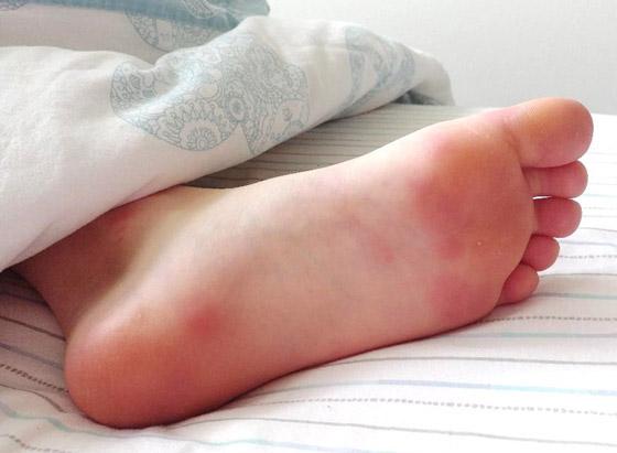 صورة رقم 6 - تعرفوا إلى 10 طرق سهلة وبسيطة لتخفيف آلام القدمين والتهاب العظام