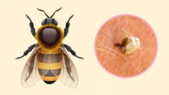 صورة رقم 2 - البعوض.. وأشهر الحشرات اللادغة وأعراض الإصابة