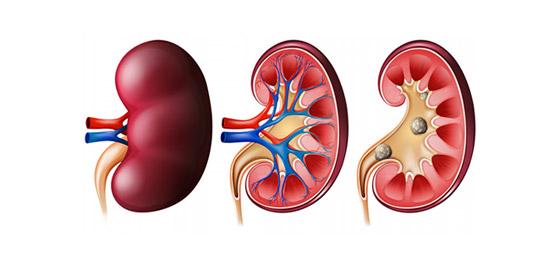 كيف يؤدي فشل الكلى المزمن إلى زيادة خطر الإصابة بأمراض القلب؟ صورة رقم 4