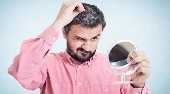 صورة رقم 1 - هل يسبب التوتر تحول لون الشعر إلى الرمادي؟