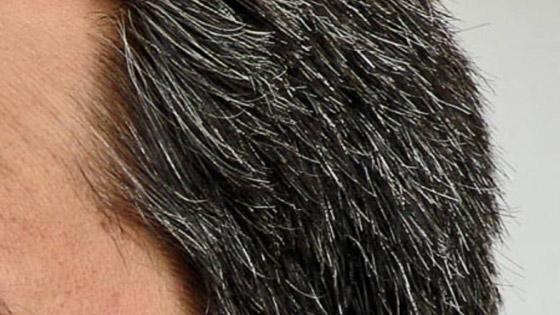 صورة رقم 5 - هل يسبب التوتر تحول لون الشعر إلى الرمادي؟