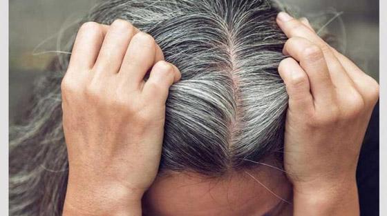 صورة رقم 2 - هل يسبب التوتر تحول لون الشعر إلى الرمادي؟