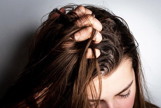 صورة رقم 2 - 5 أخطاء وعادات مؤذية تجن بوها في حالة الشعر الدهني..!