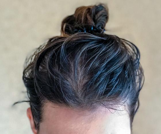 صورة رقم 7 - 5 أخطاء وعادات مؤذية تجن بوها في حالة الشعر الدهني..!