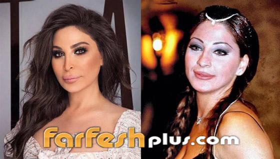 صورة رقم 4 - 6 نجمات غيرت عمليات التجميل ملامحهن وشوهتها.. صور قبل وبعد