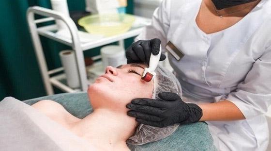صورة رقم 1 - علاجات شائعة للوجه يمكن أن تضر البشرة