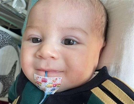 صورة رقم 9 - طفل لم يبكِ منذ وُلد! مرض نادر بدون اسم يحرم مولودا من حالته الطبيعية