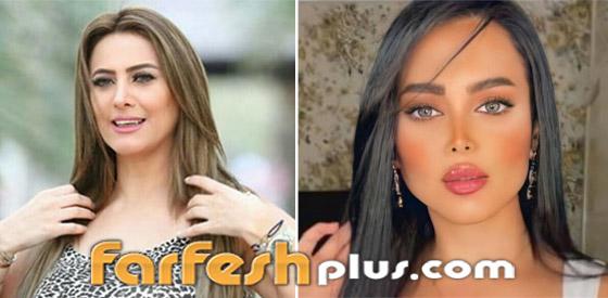 صور نجمات قبل وبعد عمليات التجميل والتغيير صادم: سوسن هارون، دنيا بطمة و صورة رقم 1