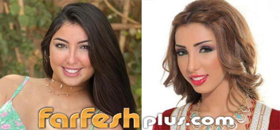 صور نجمات قبل وبعد عمليات التجميل والتغيير صادم: سوسن هارون، دنيا بطمة و صورة رقم 3