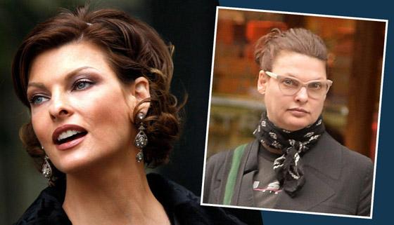 صورة رقم 3 - عارضة أزياء تطالب بـ50 مليون دولار تعويضا بعد تشوهها بعملية تجميل!