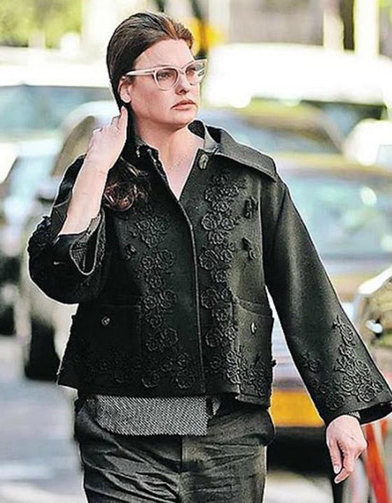 صورة رقم 7 - عارضة أزياء تطالب بـ50 مليون دولار تعويضا بعد تشوهها بعملية تجميل!