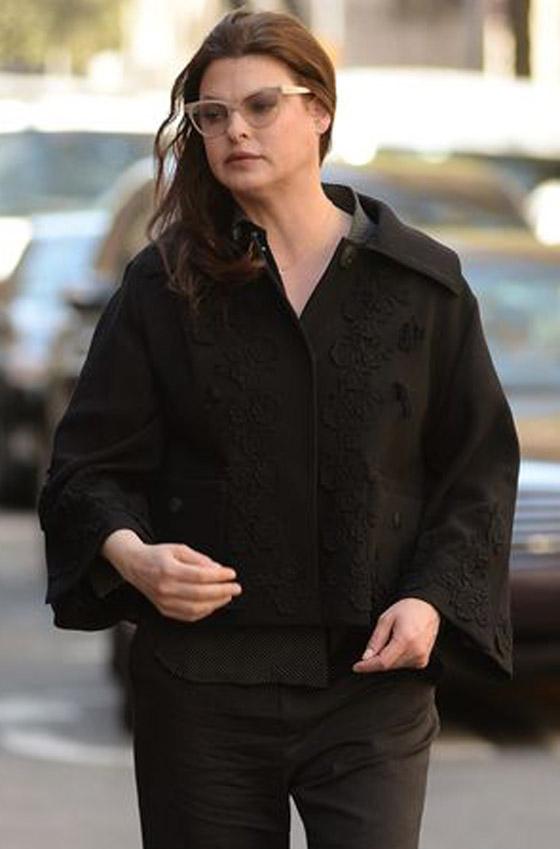 صورة رقم 8 - عارضة أزياء تطالب بـ50 مليون دولار تعويضا بعد تشوهها بعملية تجميل!