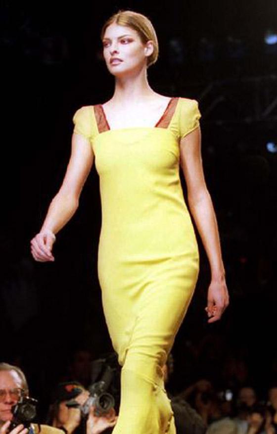 صورة رقم 18 - عارضة أزياء تطالب بـ50 مليون دولار تعويضا بعد تشوهها بعملية تجميل!