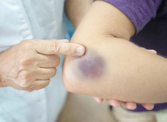صورة رقم 5 - تعاني من الكدمات الزرقاء باستمرار ولا تتذكر السبب؟ قد يشير لحالات صحية خطيرة