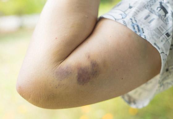 صورة رقم 6 - تعاني من الكدمات الزرقاء باستمرار ولا تتذكر السبب؟ قد يشير لحالات صحية خطيرة