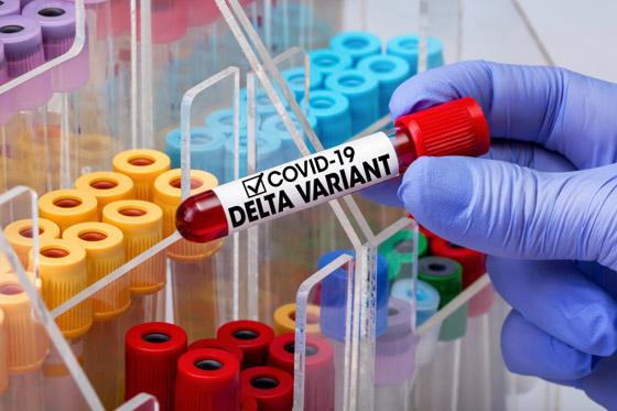 صورة رقم 4 - بشرى من خبير أمريكي: متغير دلتا قد يكون آخر تحور لفيروس كورونا!
