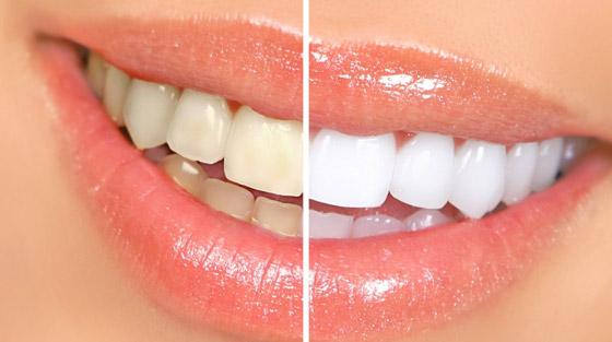 صورة رقم 1 - إليكم طرق بسيطة وعلاجات طبيعية تساعدكم على تبييض أسنانكم