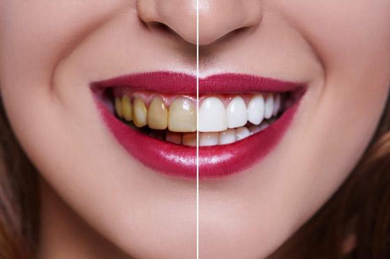 صورة رقم 3 - إليكم طرق بسيطة وعلاجات طبيعية تساعدكم على تبييض أسنانكم