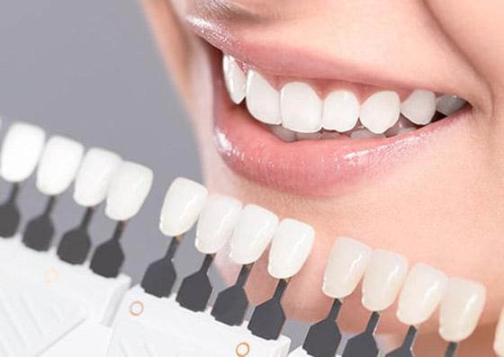 صورة رقم 6 - إليكم طرق بسيطة وعلاجات طبيعية تساعدكم على تبييض أسنانكم