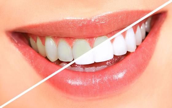 صورة رقم 7 - إليكم طرق بسيطة وعلاجات طبيعية تساعدكم على تبييض أسنانكم