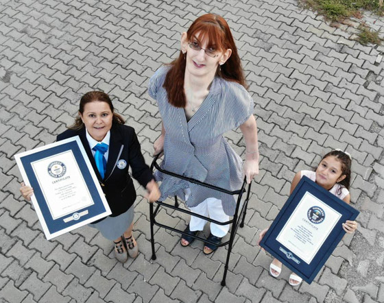 صورة رقم 1 - تركية تدخل موسوعة غينيس كأطول امرأة في العالم، ورسالتها: تقبلوا أنفسكم!
