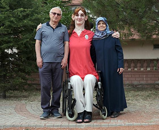 صورة رقم 3 - تركية تدخل موسوعة غينيس كأطول امرأة في العالم، ورسالتها: تقبلوا أنفسكم!