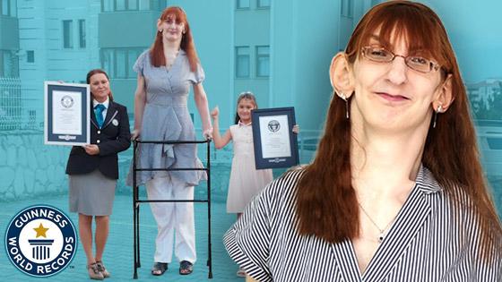 صورة رقم 4 - تركية تدخل موسوعة غينيس كأطول امرأة في العالم، ورسالتها: تقبلوا أنفسكم!