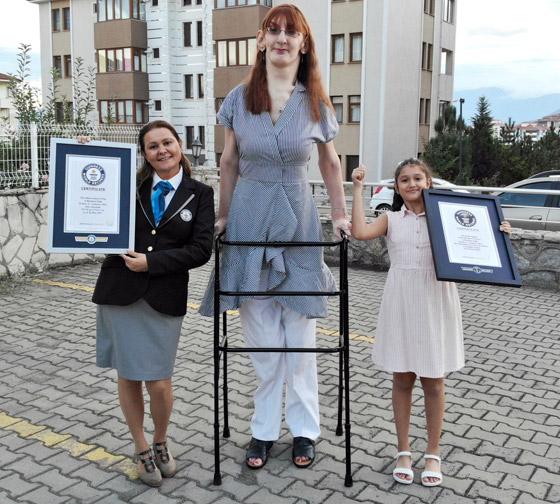 صورة رقم 5 - تركية تدخل موسوعة غينيس كأطول امرأة في العالم، ورسالتها: تقبلوا أنفسكم!