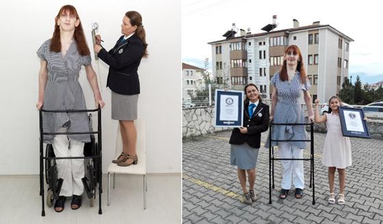 صورة رقم 6 - تركية تدخل موسوعة غينيس كأطول امرأة في العالم، ورسالتها: تقبلوا أنفسكم!