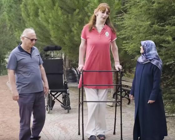 صورة رقم 7 - تركية تدخل موسوعة غينيس كأطول امرأة في العالم، ورسالتها: تقبلوا أنفسكم!