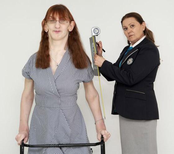 صورة رقم 9 - تركية تدخل موسوعة غينيس كأطول امرأة في العالم، ورسالتها: تقبلوا أنفسكم!