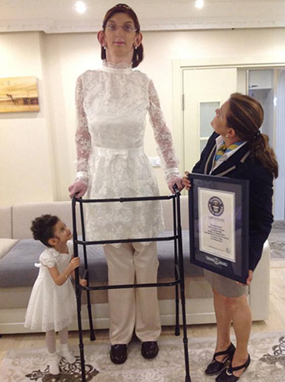 صورة رقم 10 - تركية تدخل موسوعة غينيس كأطول امرأة في العالم، ورسالتها: تقبلوا أنفسكم!