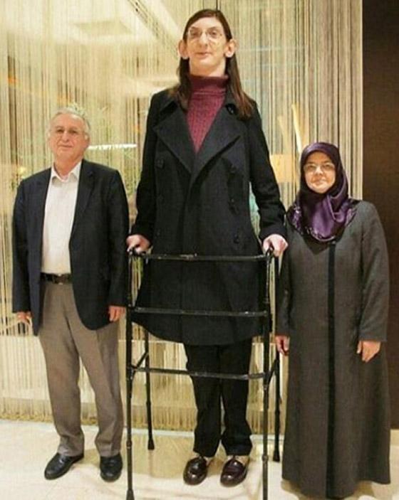 صورة رقم 13 - تركية تدخل موسوعة غينيس كأطول امرأة في العالم، ورسالتها: تقبلوا أنفسكم!