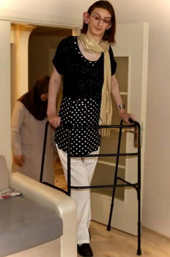 صورة رقم 14 - تركية تدخل موسوعة غينيس كأطول امرأة في العالم، ورسالتها: تقبلوا أنفسكم!
