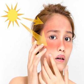 إليكم أفضل ماسك لإزالة آثار حروق الشمس