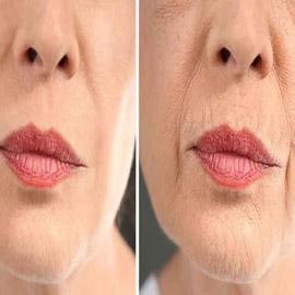 قبل البوتوكس.... نصائح لتخفيف التجاعيد حول الفم