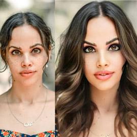 صورة ابنة عمرو دياب وتغيير كبير في وجهها! هل أجرت عملية تجميل؟