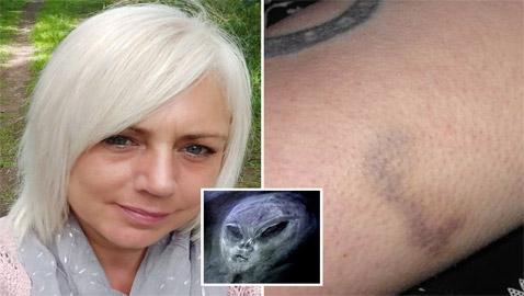 بريطانية تزعم محاربتها لكائنات فضائية: استقلت طبقا طائرا وتعرضت لكدمات