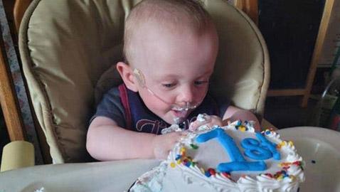 الطفل المعجزة.. أصغر مبستر بالعالم يحتفل بعيد ميلاده الأول