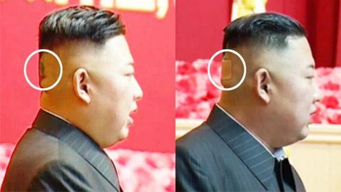كدمة داكنة وضمادة.. رأس زعيم كوريا الشمالية كيم يثير الحيرة والمخاوف!