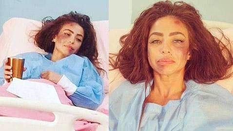 محام يطالب بسجن دوللي شاهين لادعائها كذبا تعرضها للضرب الوحشي